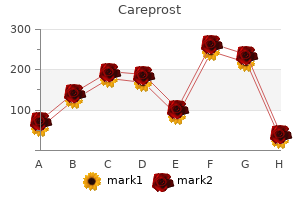 order careprost 3ml with mastercard